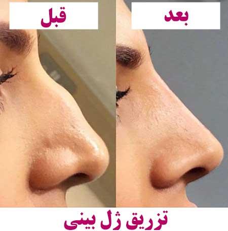 تزریق ژل بینی