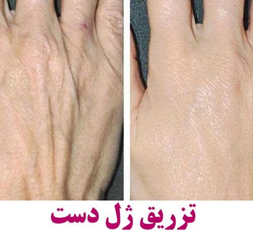 تزریق ژل چروک دست