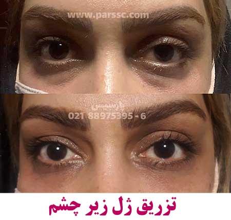 تزریق ژل چروک چشم